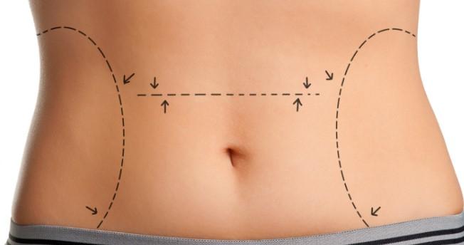 Liposuction Zayıflama Yöntemi Değildir !